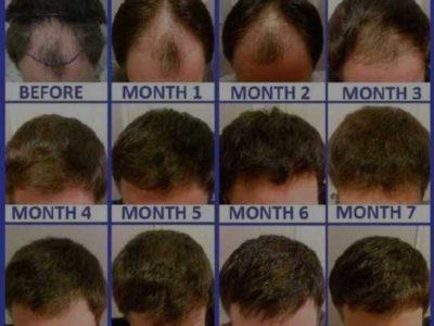 unique hair oil